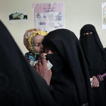 In Jemen sterven meer mensen van honger dan door geweld