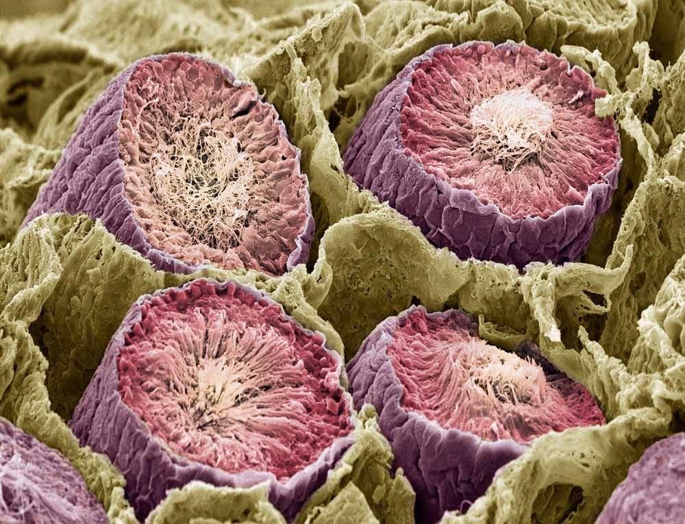 In 1677 keek de Nederlandse amateurwetenschapper Antoni van Leeuwenhoek als eerste via een microscoop naar menselijk sperma. Hiernaast een microscopisch beeld van een spermaproductie. – © Getty Images