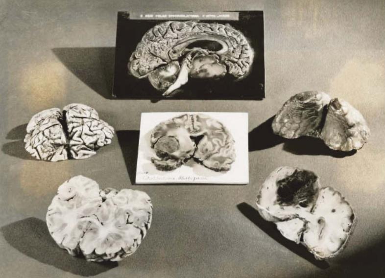 In plastic gecoate doorsnedes van hersenen voor de Wereldtentoonstelling van 1939-1940 in New York. Neurowetenschapper Kay Tye onderzoekt in welke hersendelen eenzaamheid ontstaat. © The New York Public Library